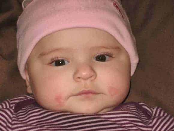 05-baby-teething-drool-rash-